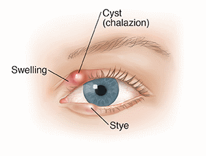 Stye and Chalazion, A Chalazion Or Stye, An Overview Of Chalazion